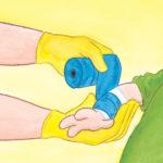 Legen gipser armen til Bo